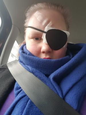 Silmäni nk. teipattiin umpeen, koska operaation jälkeen silmäni eivät kestä yhtään valoa, silmät vuotavat tuhottomasti vettä ja silmäni on turvonnut alla melkoisesti.