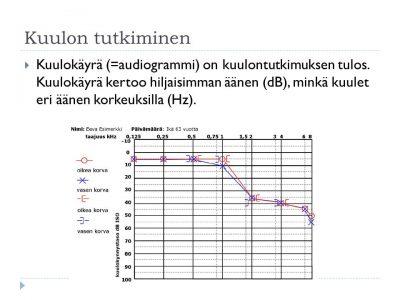 Esimerkkikuva kuulokäyrästä. (c) Leena Lahti, kuulon kuntoutus